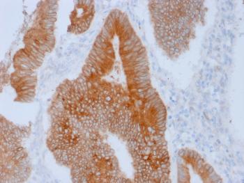 Anti-Aurora B (Proliferation Marker) Monoclonal Antibody(Clone: AURKB/1592)