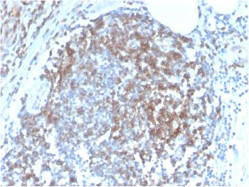Anti-CD6 (Negative Marker of T-regulatory Cells) Monoclonal Antibody(Clone: C6/2884R)