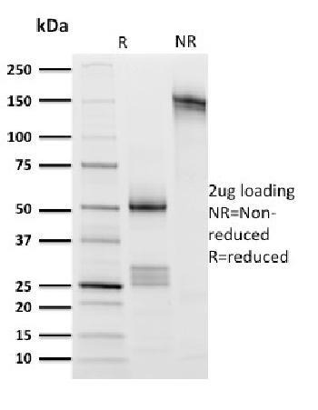 Anti-CD8A (Cytotoxic- & Suppressor T-Cell Marker) Monoclonal Antibody(Clone: UCHT4)