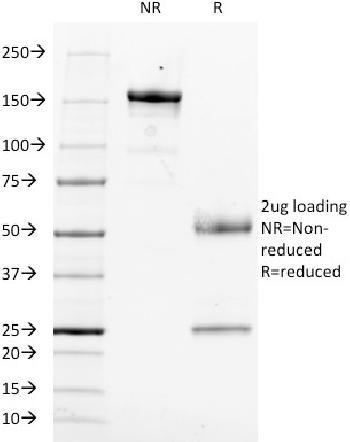 Anti-CD14 (Monocyte / Macrophage Marker) Monoclonal Antibody(Clone: LPSR/553)