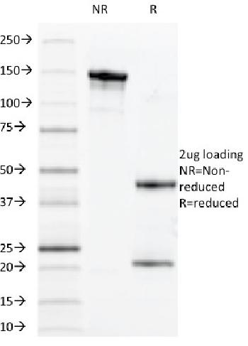 Anti-CD14 (Monocyte / Macrophage Marker) Monoclonal Antibody(Clone: MDA/929)