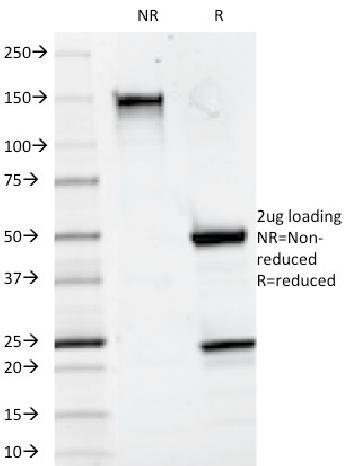 Anti-CD20 / MS4A1 (B-Cell Marker) Monoclonal Antibody(Clone: 93-1B3)