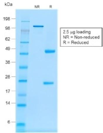 Anti-CD20 / MS4A1 (B-Cell Marker) Monoclonal Antibody(Clone: rIGEL/773)