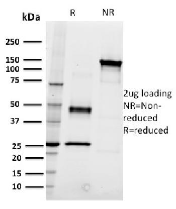 Anti-CD22 / BL-CAM (B-Cell Marker) Monoclonal Antibody(Clone: RFB4)