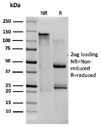 Anti-CD80 (B7-1) Monoclonal Antibody(Clone: C80/1608)
