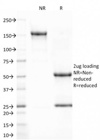 Anti-CD80 (B7-1) Monoclonal Antibody(Clone: C80/2723)