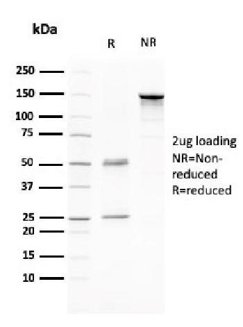 Anti-CD80 (B7-1) Monoclonal Antibody(Clone: C80/2776)