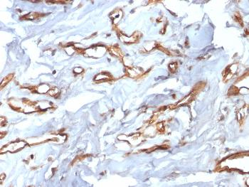Anti-CD34 (Hematopoietic Stem Cell & Endothelial Marker) Monoclonal Antibody(Clone: HPCA1/2598R)