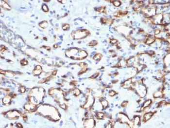 Anti-CD34 (Hematopoietic Stem Cell & Endothelial Marker) Polyclonal Antibody