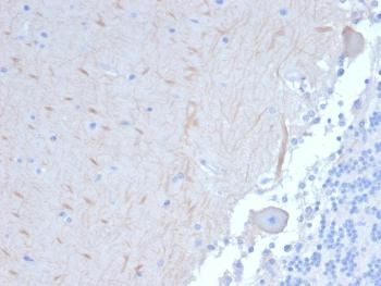 Anti-ATG5 (Autophagy Marker) Monoclonal Antibody(Clone: ATG5/2101)