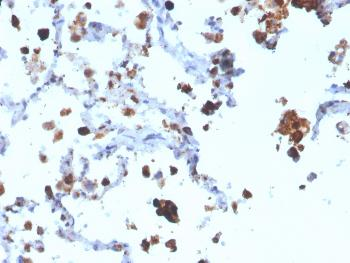 Anti-Napsin A (Lung Adenocarcinoma Marker) Monoclonal Antibody(Clone: NAPSA/3308)