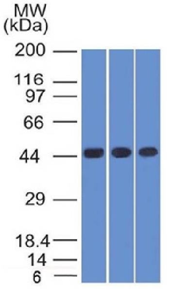 Anti-Napsin A (Lung Adenocarcinoma Marker) Monoclonal Antibody(Clone: NAPSA/1238)