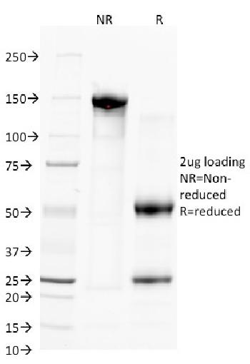 Anti-CD38 (ADP Ribosyl Cyclase 1) Monoclonal Antibody(Clone: FS02)