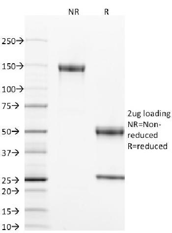 Anti-CD40 / TNFRSF5 / CD40L-Receptor Monoclonal Antibody(Clone: T8P2G4*A6)