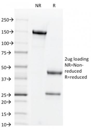 Anti-CD44v3 (Marker of Tumor Metastasis) Monoclonal Antibody(Clone: 2F10)