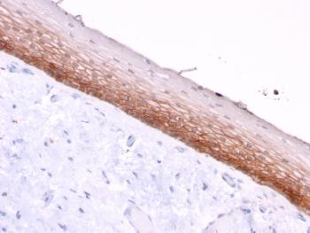 Anti-CD44v4/5 (Marker of Tumor Metastasis) Monoclonal Antibody(Clone: 3D2)