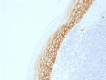 Anti-CD44v9 (Marker of Tumor Metastasis) Monoclonal Antibody(Clone: CD44v9/2344R)