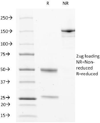 Anti-CD63 (Late Endosomes Marker) Monoclonal Antibody(Clone: LAMP3/529)