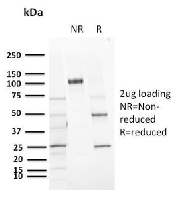 Anti-CD72 (B Cell Marker) Monoclonal Antibody(Clone: BU40)