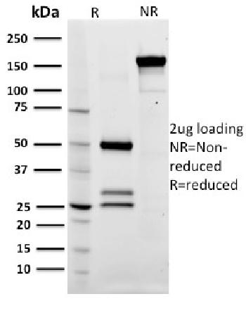 Anti-CD79a (B-Cell Marker) Monoclonal Antibody(Clone: ZL7-4)