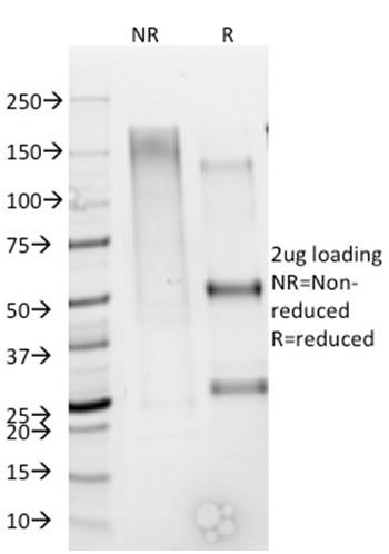 Anti-CD79b (B-Cell Marker) Monoclonal Antibody(Clone: IGB/1844)