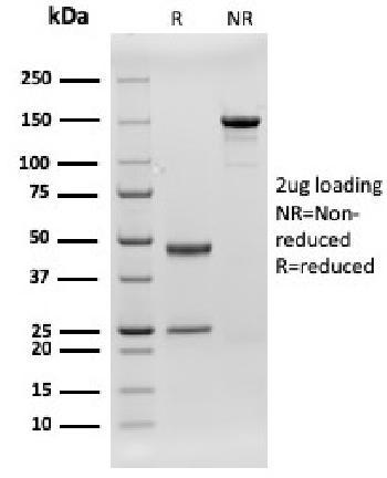 Anti-CD79b (B-Cell Marker) Monoclonal Antibody(Clone: rIGB/1842)