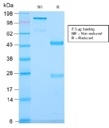 Anti-CD79b (B-Cell Marker) Monoclonal Antibody(Clone: IGB/2940R)