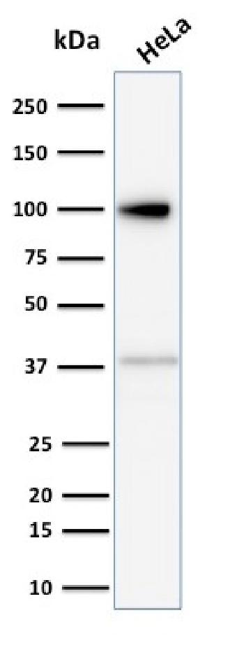 Anti-Major Vault Protein (MVP) Monoclonal Antibody(Clone: 1014)