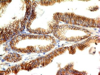 Anti-E-Cadherin (CDH1) / CD324 (Intercellular Junction Marker) Monoclonal Antibody(Clone: CDH1/1525)