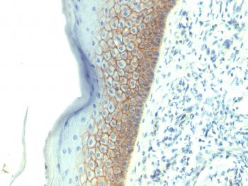 Anti-E-Cadherin / CD324 (Intercellular Junction Marker) Monoclonal Antibody(Clone: SPM381)