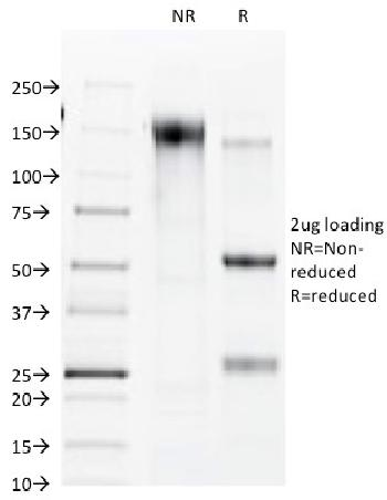 Anti-Connexin 32 (Gap Junction Protein) Monoclonal Antibody(Clone: R5.21C)