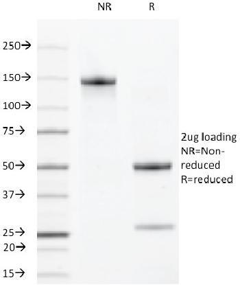 Anti-VEGF-R2 / CD309 / Flk-1 / KDR3 Monoclonal Antibody(Clone: DC101)