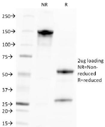 Anti-Cytomegalovirus p65 (CMV-p65) Monoclonal Antibody(Clone: CMV100)