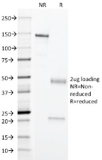 Anti-Erythrocyte Specific Monoclonal Antibody(Clone: SFL23.6)
