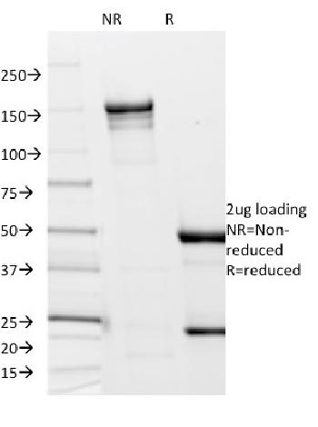 Anti-Borrelia burgdorferi (p41 Flagellin) Monoclonal Antibody(Clone: 6802)