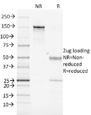 Anti-MHC II, Mouse Monoclonal Antibody(Clone: MK-D6)