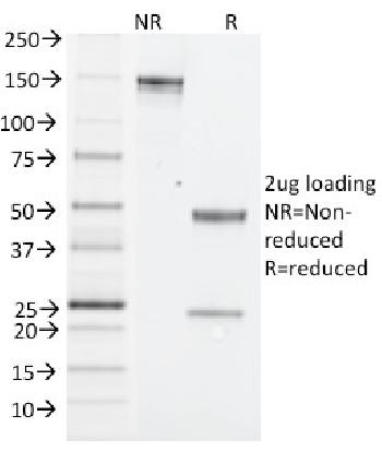 Anti-NK1.1 / CD161c / Klrb1c, Mouse Monoclonal Antibody(Clone: PK136)