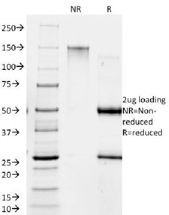 Anti-Giardia lamblia Monoclonal Antibody(Clone: BB1.1E5)