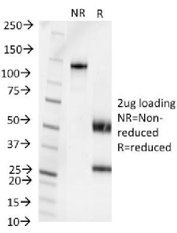 Anti-Pseudomonas aerµginosa serotype 6C Monoclonal Antibody(Clone: 1200/472)
