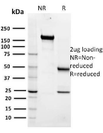 Anti-Maltose Binding Protein / MBP-probe Monoclonal Antibody(Clone: R29.6)