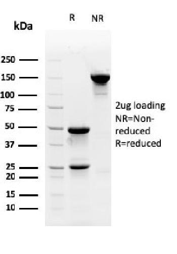 Anti-Myofibroblast Marker Monoclonal Antibody(Clone: PR 2D3)
