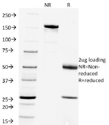 Anti-Rabies Virus Monoclonal Antibody(Clone: Rab-50)