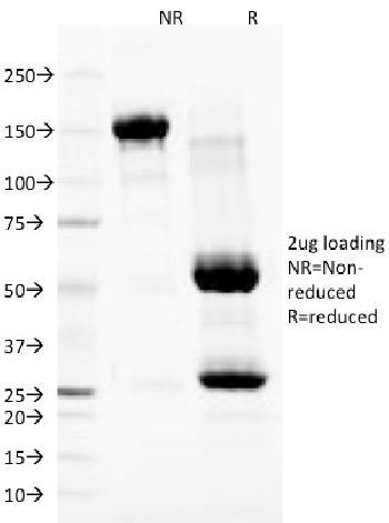 Anti-Nuclear Membrane Marker Monoclonal Antibody(Clone: NM97)