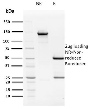 Anti-HPV16 E2 (Human Papilloma Virus 16) Monoclonal Antibody(Clone: TVG 261)