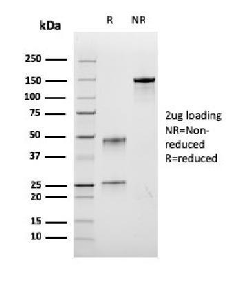 Anti-Bromodeoxyuridine (BrdU) (Proliferation Marker) Monoclonal Antibody(Clone: rBRD.3)