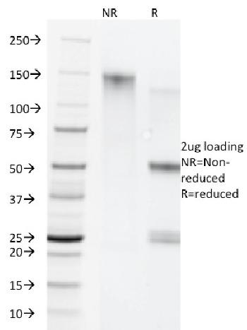 Anti-Cytokeratin 5/8 Monoclonal Antibody(Clone: C-50)