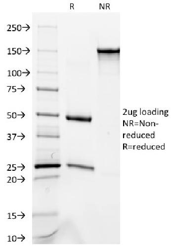 Anti-Cytokeratin 8/18 Monoclonal Antibody(Clone: C-51)