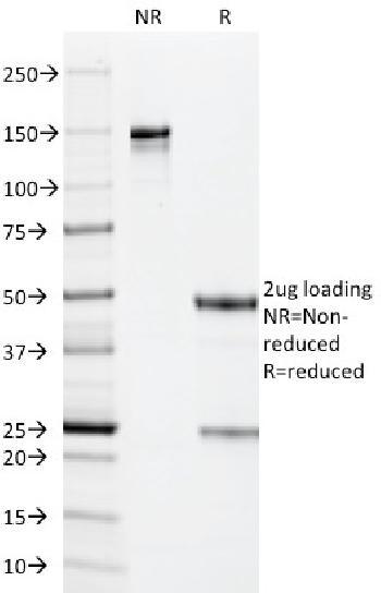 Anti-Cytomegalovirus p65 (CMV-p65) Monoclonal Antibody(Clone: CMV101)