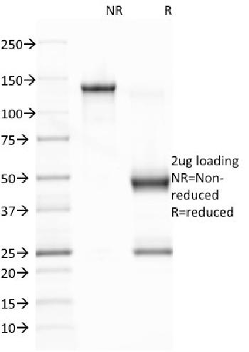 Anti-Epstein-Barr Virus (LMP-1) Monoclonal Antibody(Clone: CS1)