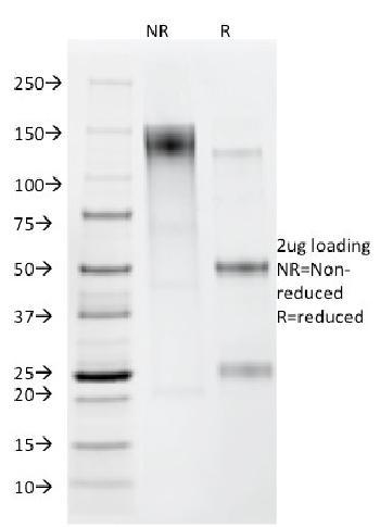 Anti-Helicobacter pylori Monoclonal Antibody(Clone: HP/212)